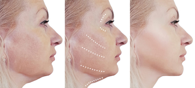 Skin tightening process